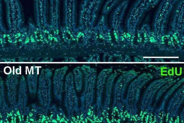 肠道菌群或能改变机体的衰老进程-fudajzx.com北纳标物网