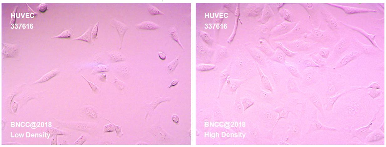 人脐静脉血管内皮细胞-实验细胞-标准物质网