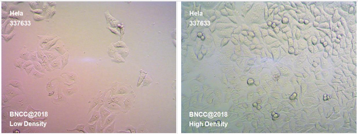 人宫颈癌细胞-实验细胞-标准物质网