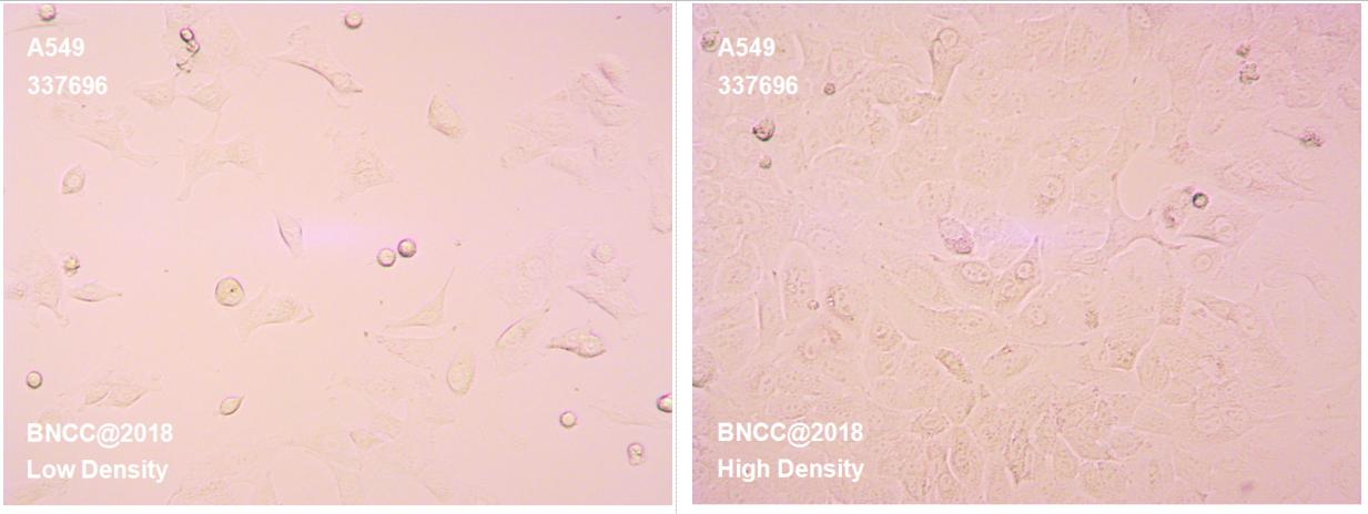 人肺癌细胞-实验细胞-标准物质网