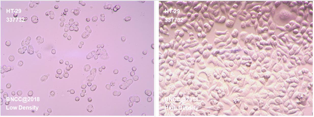 人结直肠腺癌细胞-肿瘤细胞-BNCC细胞库-细胞菌种网