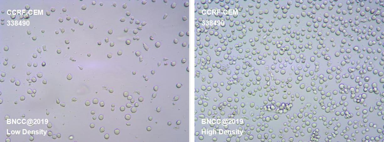 人急性淋巴细胞白血病T淋巴细胞-菌种及细胞-北纳生物
