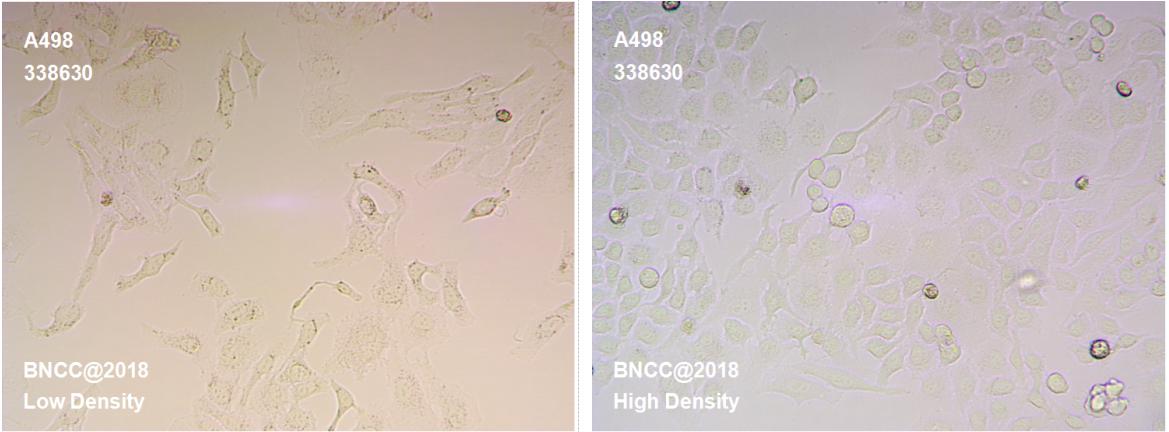 人肾癌细胞-菌种及细胞-北纳生物